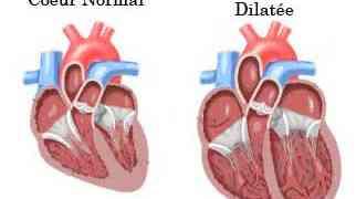 La cardiomyopathie dilatée chez le chien - Le Rottweiler