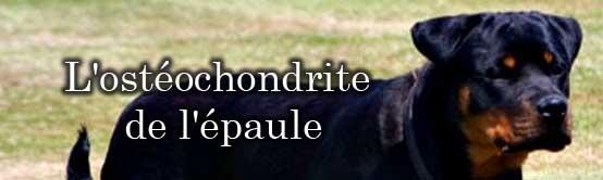 osteochondrite_de_epaule